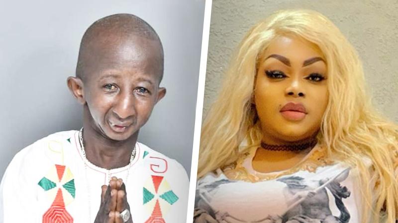 زوج نامتجانس؛ ازدواج مدل قوی هیکل ساحل عاجی با خواننده گینهای مبتلا به پیرکودکی