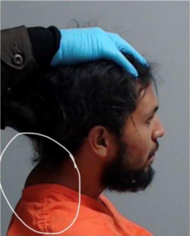 مرد جوانی پس از اینکه نیروهای پلیس تگزاس گردن او را هنگام دستگیری شکسته و برای گرفتن عکس چهره او برای ثبت در پرونده سرش را بالا نگه داشتند، جان باخت.