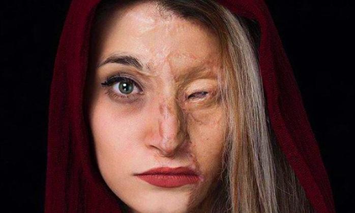 از «مرضیه» تا «سحر»: جزییات اسیدپاشی مرگبار دختر تهرانی روی پدرش