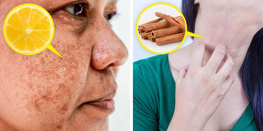 مضرات افراط در استفاده از مواد طبیعی در روتین مراقبت از پوست