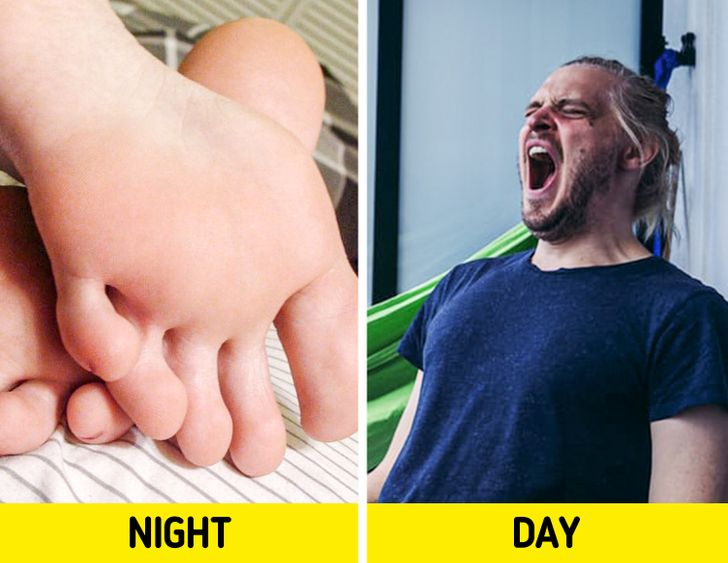 چرا بعضی ها هنگام خواب پاهای خود را به هم می مالند؟