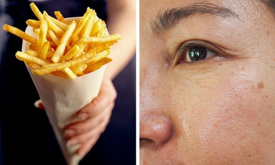 برای داشتن پوست بدون چین و چروک از این مواد غذایی پرهیز کنید