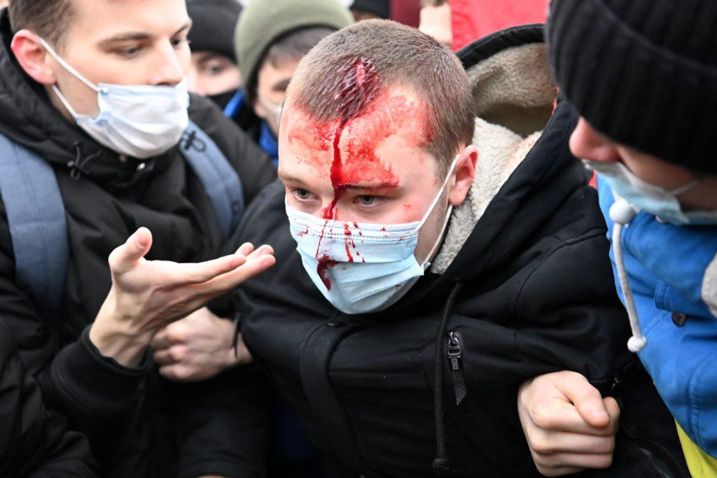 تصاویر درگیریهای خشونت بار مخالفان ولادیمیر پوتین با نیروهای امنیتی در روسیه + ویدیو