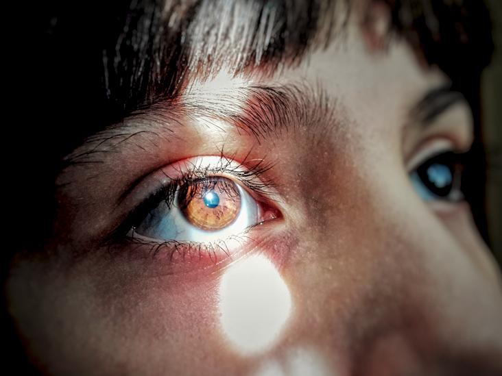 گشاد شدن مردمک چشم ها