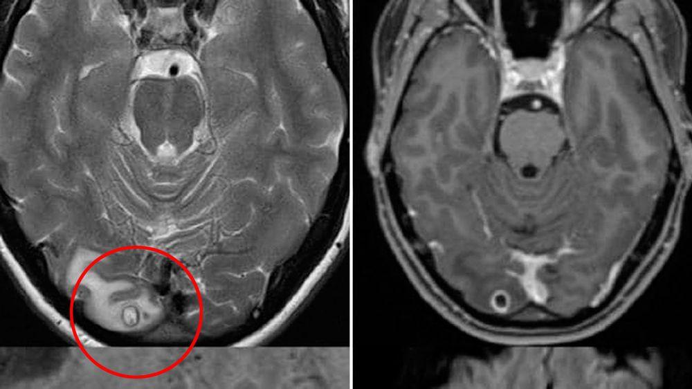 پیدا شدن تخم کرم در مغز زن استرالیایی پس از ۷ سال سردرد