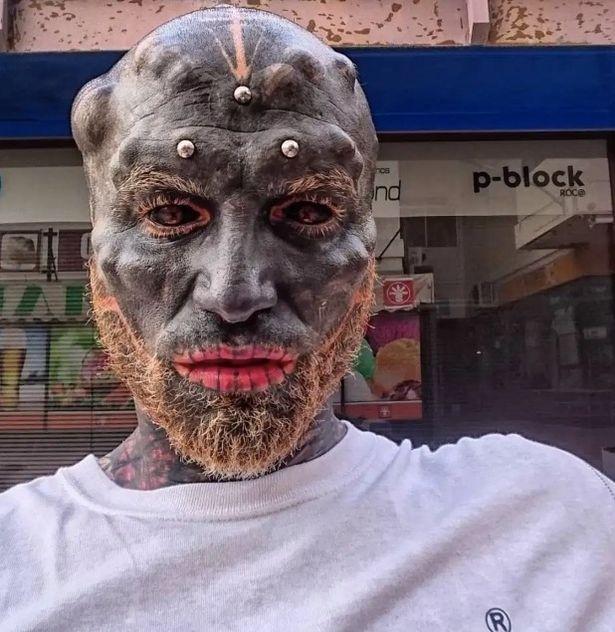 مردی که می خواهد شبیه یک موجود فضایی سیاه به نظر برسد و قبلاً بینی خود را بریده است، لب بالایی خود را نیز در آخرین دستکاری از دست داده است.