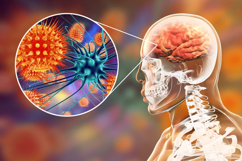 شیوع ویروس نیپاه (Nipah) در چین با میزان کشندگی 75 درصد می تواند یک پاندمی بزرگ دیگر را در پی داشته باشد،