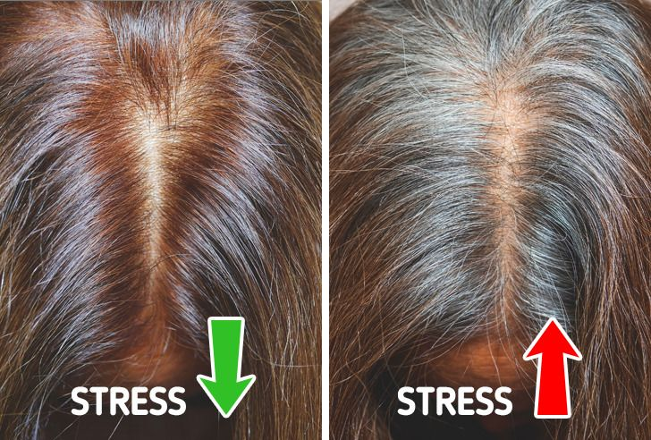 سفیدی زودرس مو؛ چرا بعضی ها در جوانی موهایشان سفید می شود؟