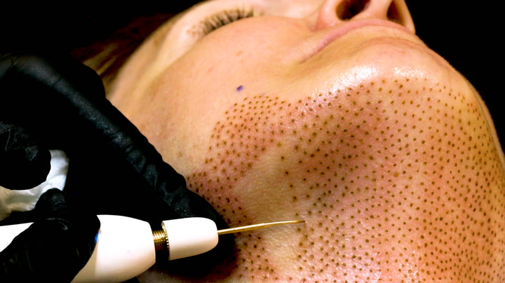 کوچک کردن بینی بدون جراحی با روش پلاسما فیبروبلاست