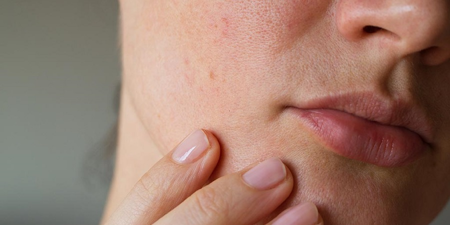 ۷ چیز عادی که نمی دانستید باعث مسدود شدن منافذ پوست می شوند