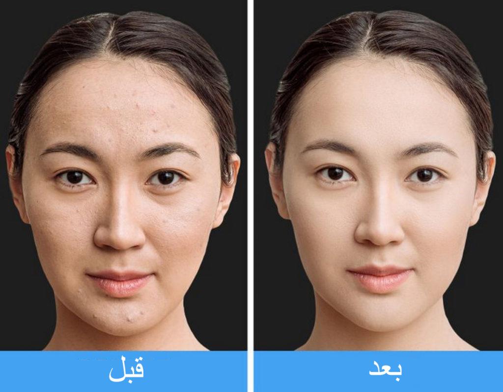 چرا ژاپنیها صورت خود را ۱۰ دقیقه میشویند؟
