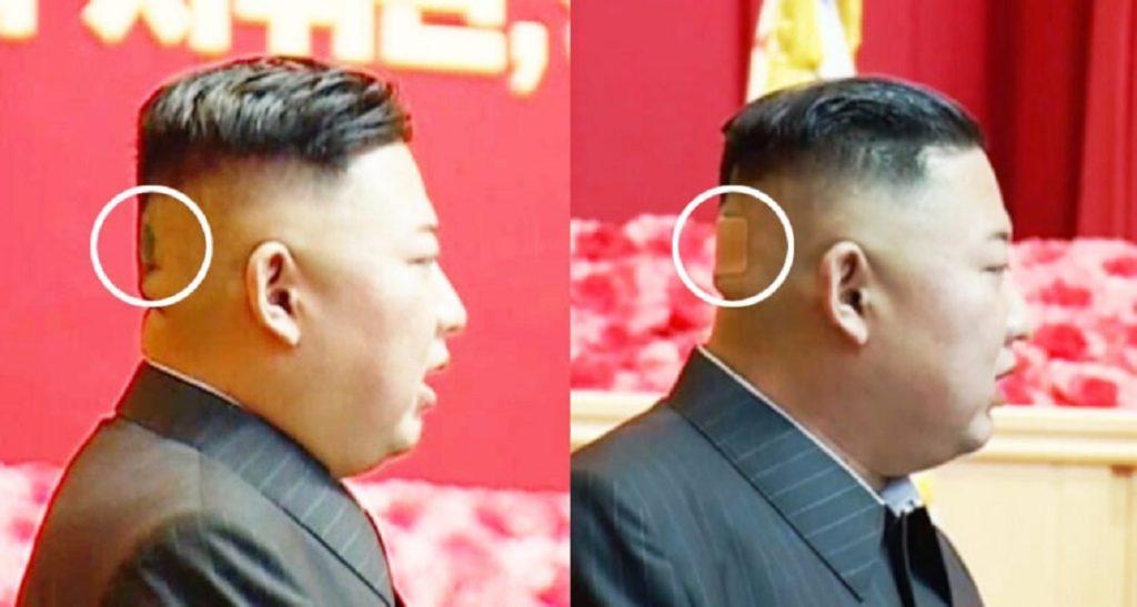 بانداژ پشت سر رهبر کره شمالی به خاطر چیست؟