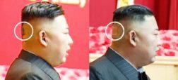 وضعیت سلامت کیم جون اون رهبر کره شمالی