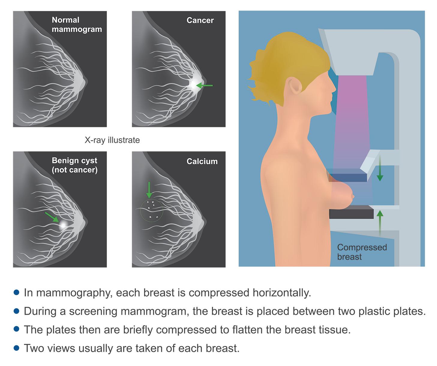 ماموگرافی چگونه انجام میشود