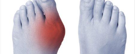 ۸ راه برای تسکین درد انحراف شست پا