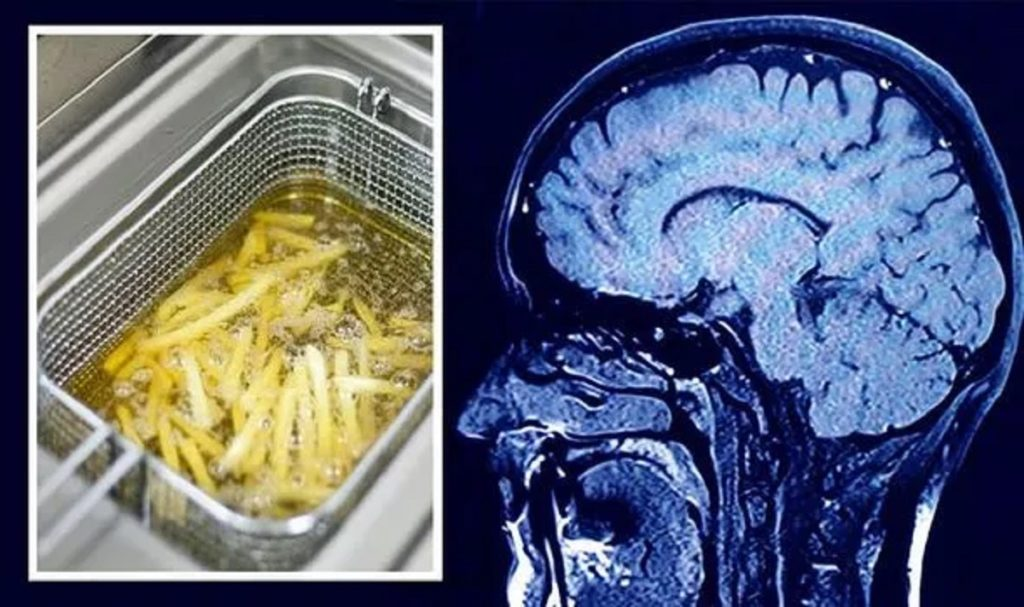 غذاهایی که برای دوری از آلزایمر باید از رژیم غذایی خود حذف کنید