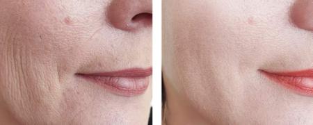 بهترین روشهای جوانسازی پوست
