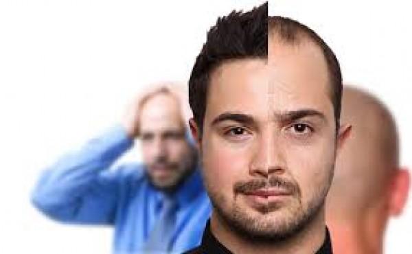 در کلینیک کاشت مو چه خدماتی دریافت می کنیم؟